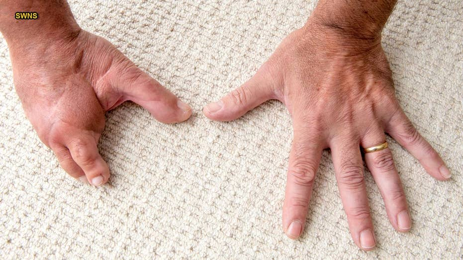 Father gets fingers replaced with toes after losing them in industrial blender accident