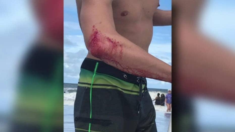 Professional surfer bitten by shark off Jacksonville Beach, Florida