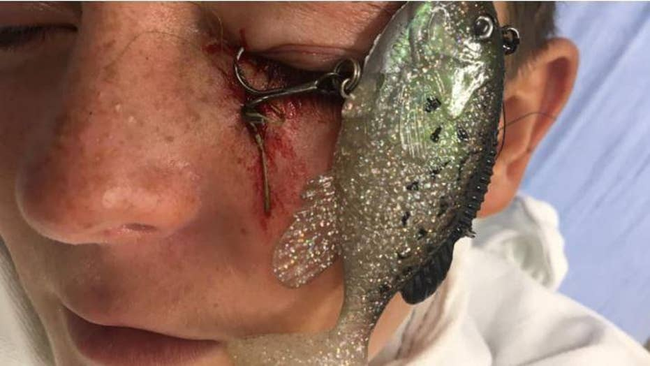 Fishing accident nearly cost boy his eye
