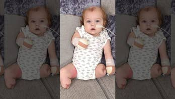 UK baby loses all 4 limbs following horrific sepsis infection