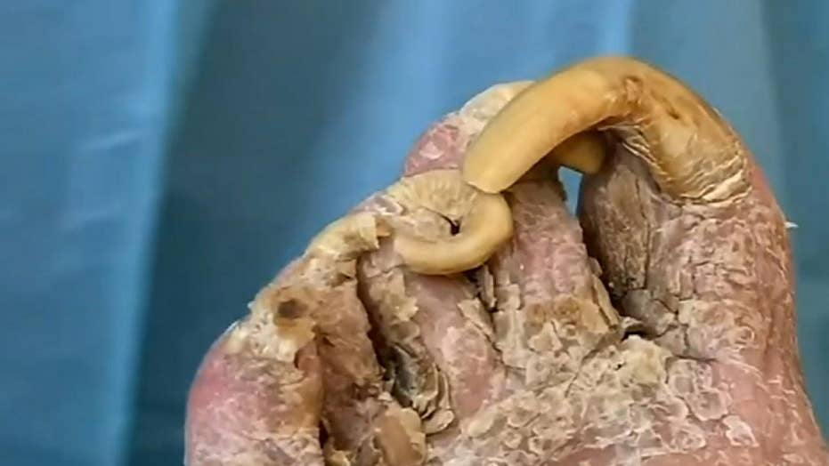 Florida podiatrist cuts patient's giant infected toenails