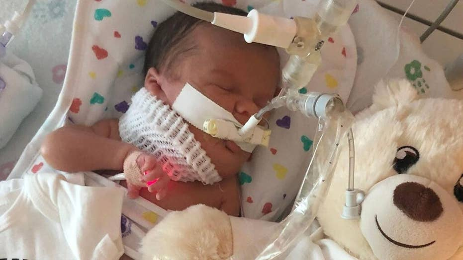 Illinois baby has 5-inch growth removed from neck hours after birth
