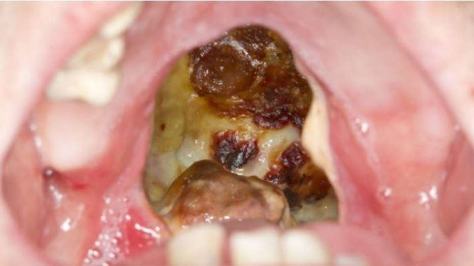 Cocaine abuse leaves fatal infected erosion in man's throat