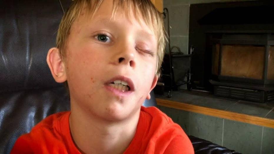 8-year-old Colorado boy survives mountain lion attack