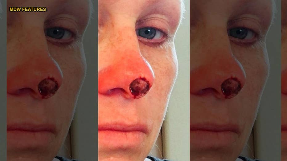 Woman who tanned up to six times a week left with hole in face after skin cancer diagnosis