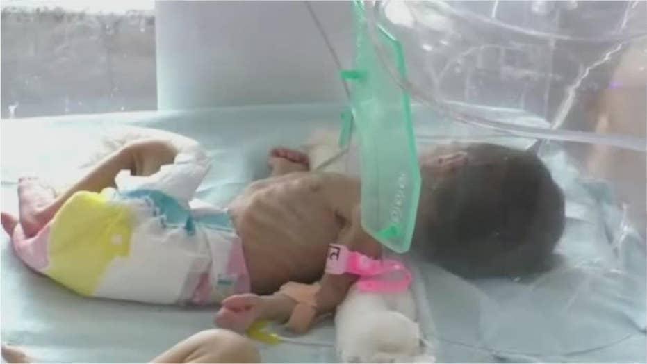 Newborn girl found buried alive in pot in India