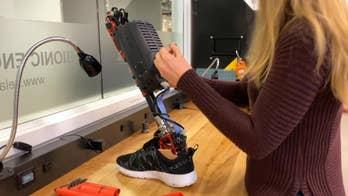 Prototype bionic leg could revolutionize prosthetics