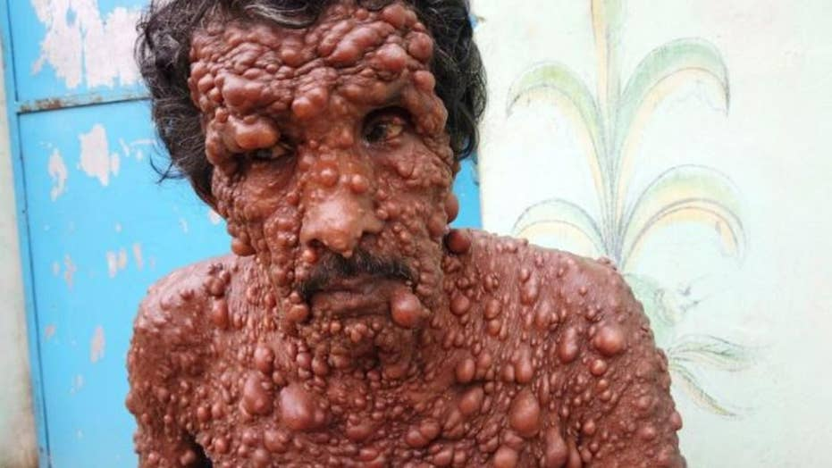 Rare skin condition leaves India man covered in tumors