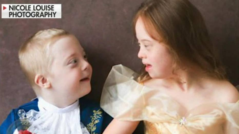 British photographer raises awareness for Down Syndrome