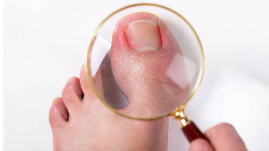 How to spot the signs of an infected toenail