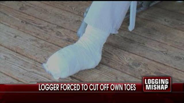 Logger Forced to Cut Off Toes for Safety