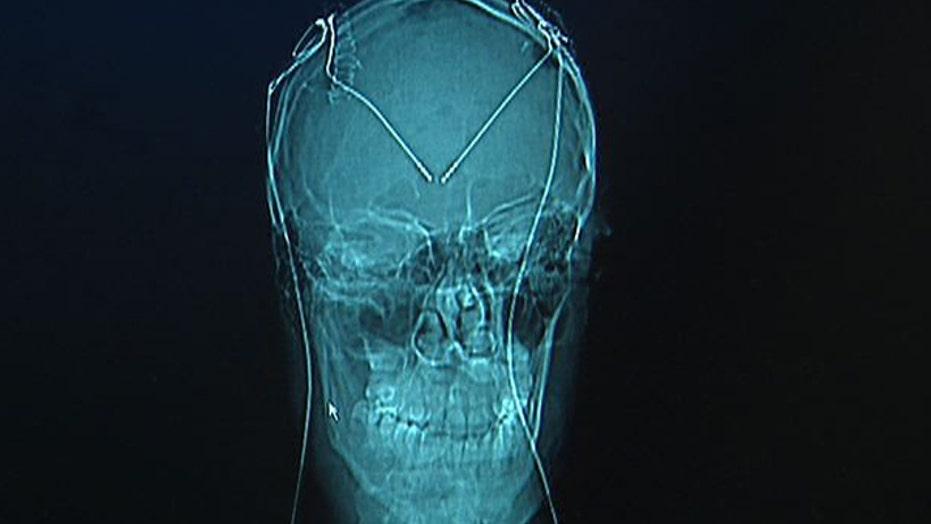 Brain Surgery for Tourette's