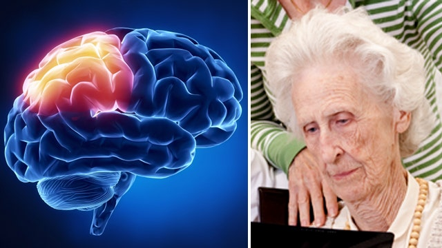 Report: Elderly brains appear slow because they know so much