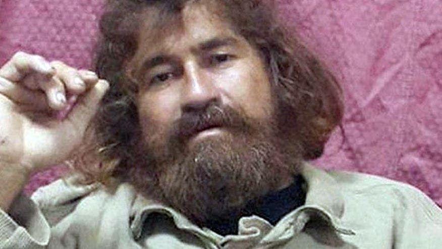 Condition of alleged castaway examined