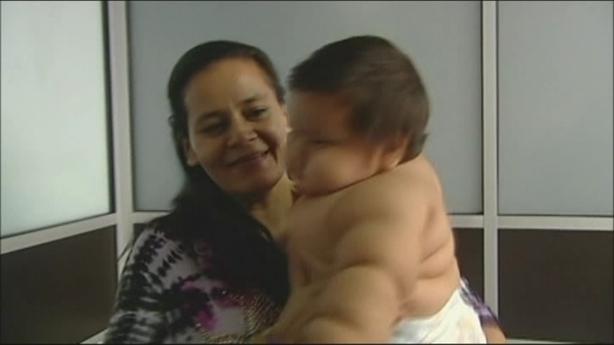 An 8-month-old baby in Colombia is making national headlines because he is nearly 30 pounds overweight.
