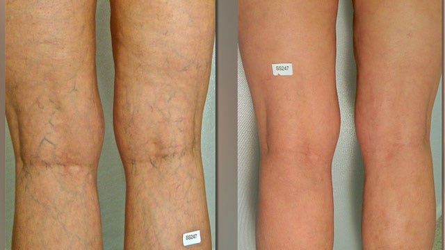 Pain-free solution for spider veins