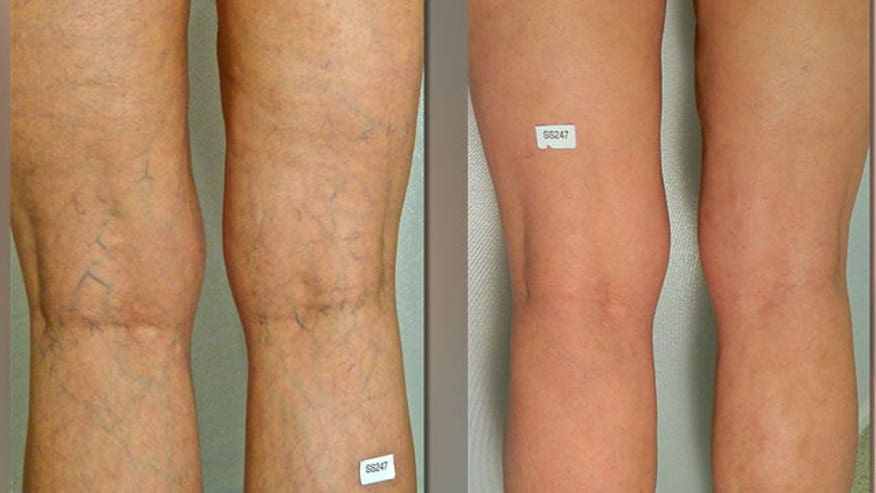 A new procedure called cryosclerotherapy is allowing patients to get rid of spider veins permanently and painlessly with dramatic results. Dr. Luis Navarro from The Vein Treatment Center in New York City shows us how it's done