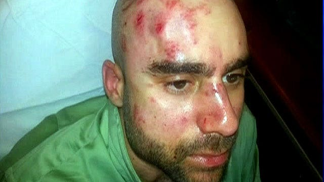 Professor brutally attacked on college campus