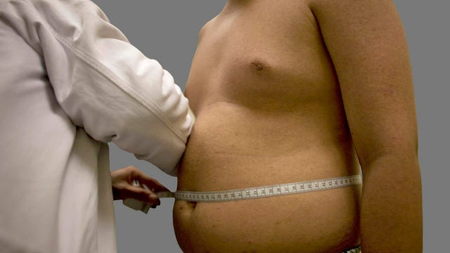 Overweight men at greater risk of prostate cancer