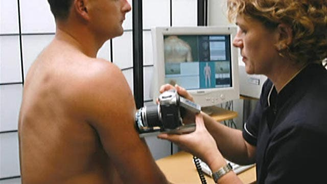 New technology helps detect melanoma early