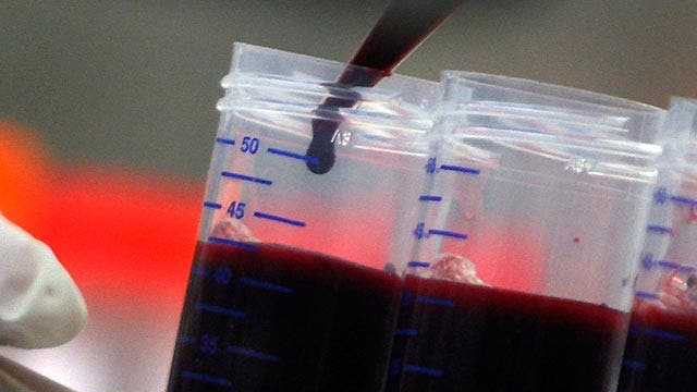 Can 'young blood' help reverse the aging process?