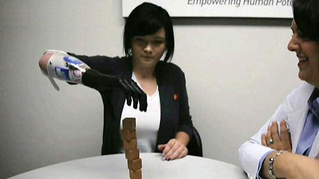Ohio teen who received bionic arm speaks out
