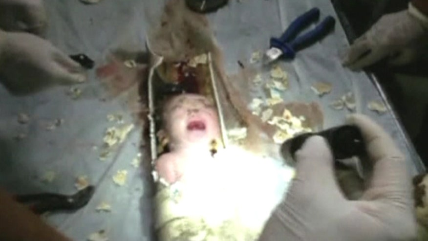 Raw video: Firefighters, medics cut baby from pipe below toilet in China