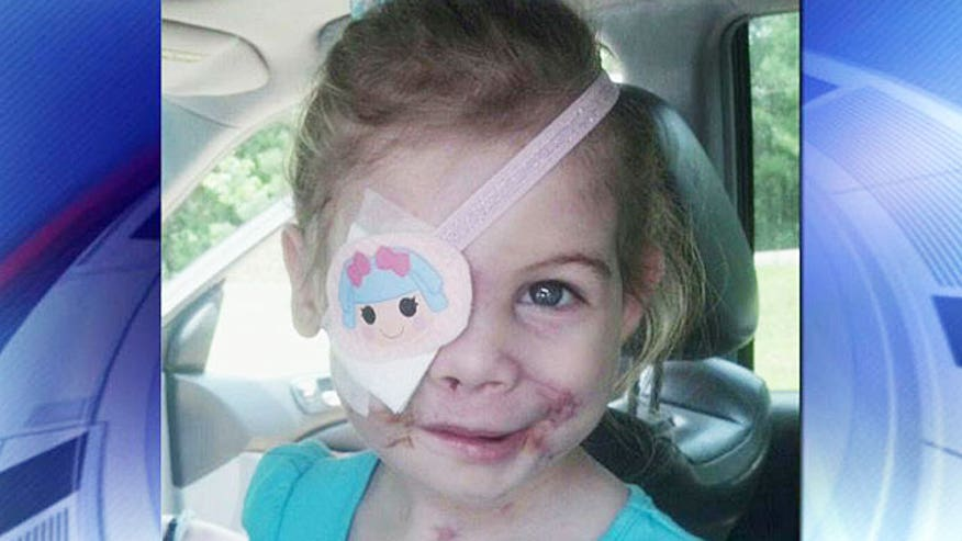 3-year-old recovering from dog attack told she was disturbing other customers in Mississippi