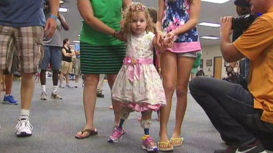 Emotional moment for Florida family after two-year-old uses prosthetic legs for first time