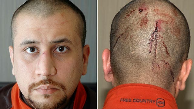 Medical report: The key evidence in Zimmerman trial?