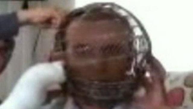 Man wears face cage to stop smoking habit