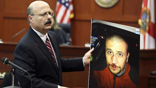 State's 'weak' argument contributed to Zimmerman acquittal