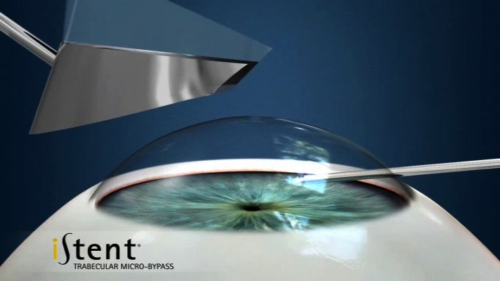 iStent provides permanent relief for glaucoma patients