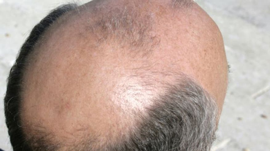 Nearly 50 percent of men will have male-patterned hair loss at some point in their life. Now there is a minimally invasive robotic hair restoration system that can give guys their hair back