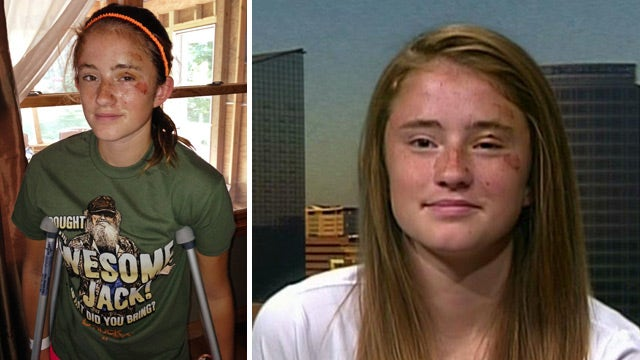 Mich. girl recalls terrifying bear attack