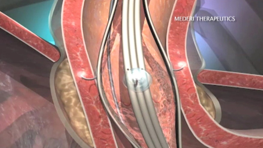 Over 15 million Americans suffer from gastroesophageal reflux disease, or GERD. Check out how new technology is using radiofrequency to help reshape the muscles of the esophagus and offer lasting relief