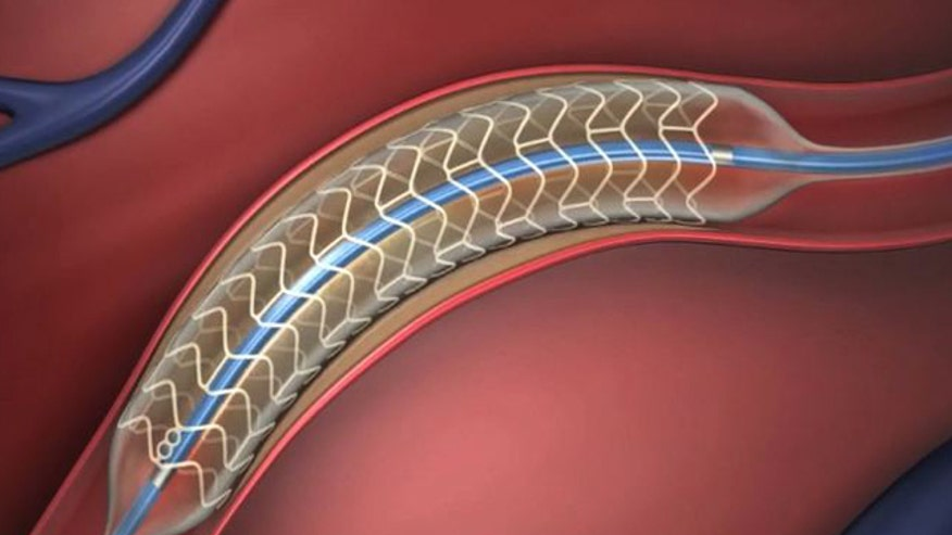 Cardiac stents have been used for almost 20 years to clear blocked arteries but once the stent does its job a metal scaffold is left behind.  A clinical trial is underway to test a new type of stent that is completely dissolvable