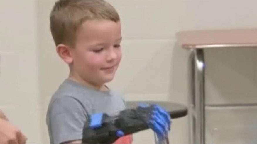 Texas boy gets 3D printed prosthetic hand
