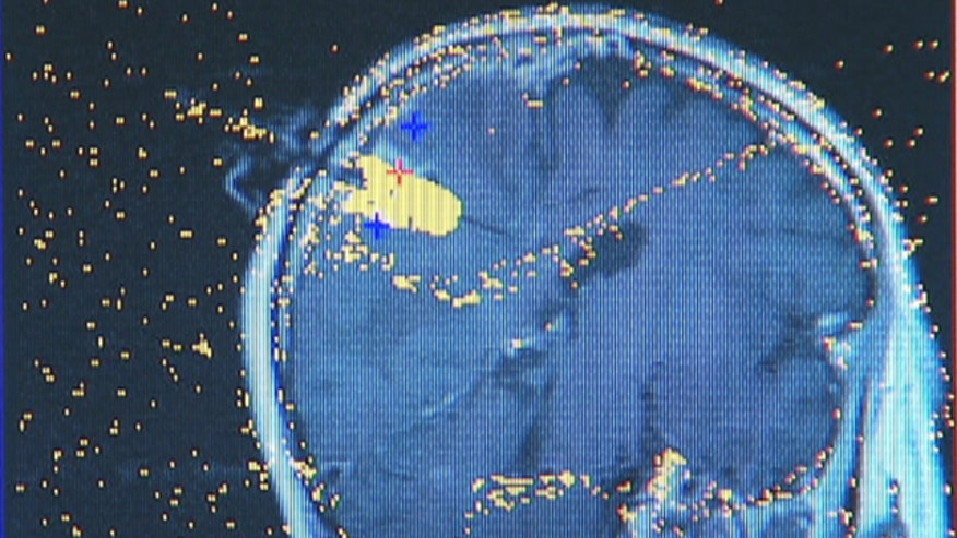 Over 3 million people suffer from epilepsy in the United States, and past treatment options were limited to medications or open brain surgery. Now, a technique called laser ablation, is a less-invasive way to eliminate seizures
