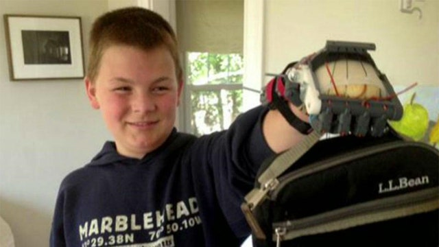 Father makes son's prosthetic hand with 3D printer