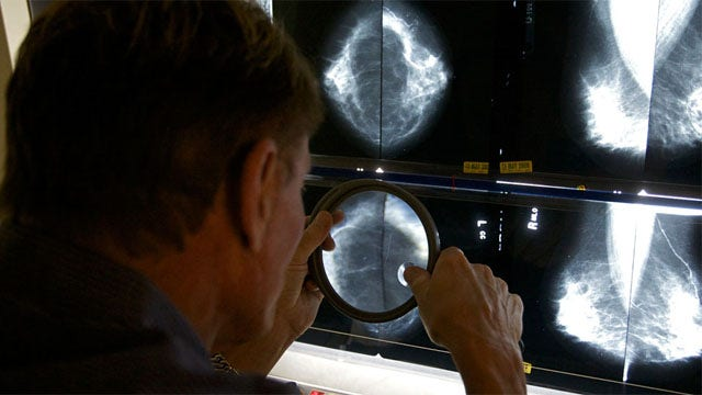 Obesity linked to breast cancer?