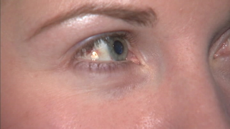 An eye-opening new procedure: See a New York City woman get a piece of platinum jewelry implanted in her eye
