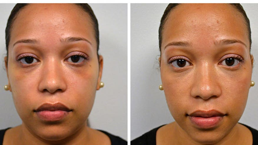 See under eye circles go away with just a needle.