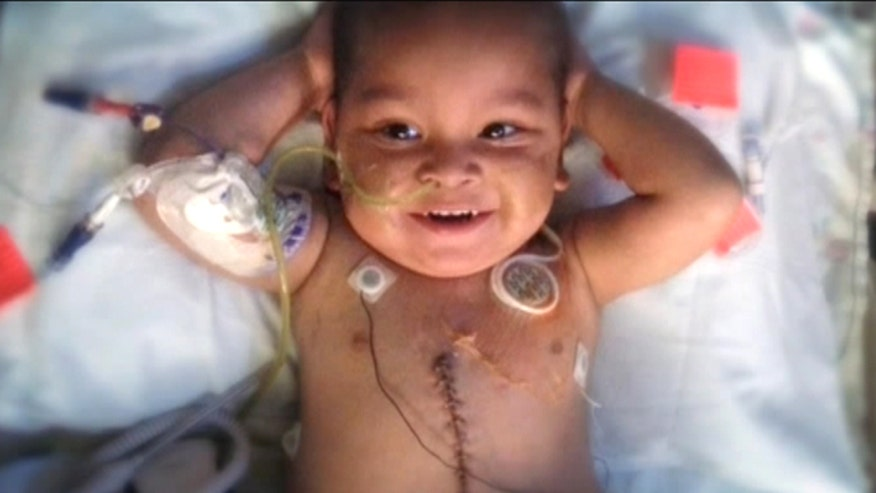 Florida toddler on road to recovery after surgery to fix 'short gut syndrome'