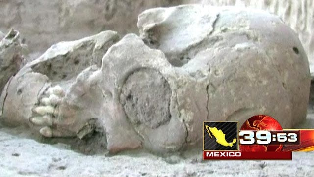 Around the World: Dozen misshaped skulls found in Mexico