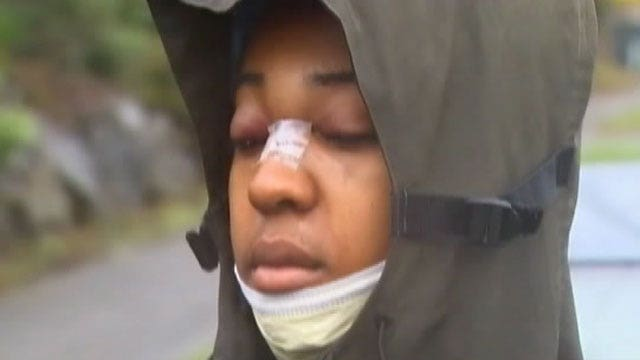 Glasses stop bullet, save teen's life