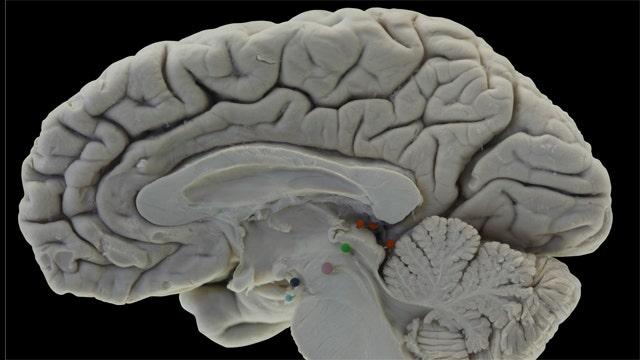 Shocking Alzheimer's study