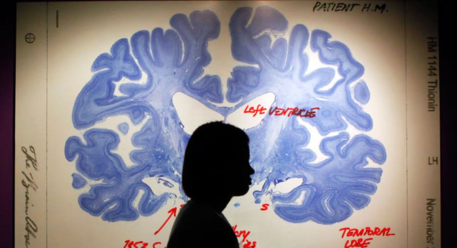 Brain Slice Display Image, Reuters