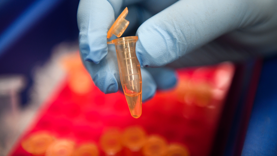 First blood test to help diagnose brain injuries gets US OK