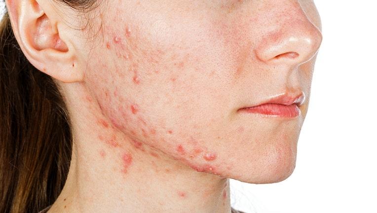 Dermira shares halted on news of acne drug failure